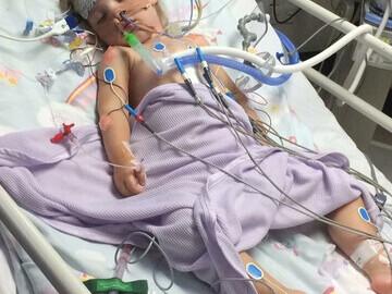 Abby in ICU having undergone successful open heart surgery